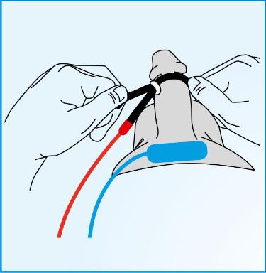 1: Anlegen der Elektroden