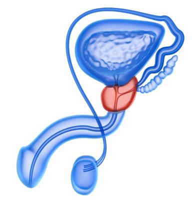 Erektionsstörungen nach Prostatakrebs_Lancy Elektromedizin_02